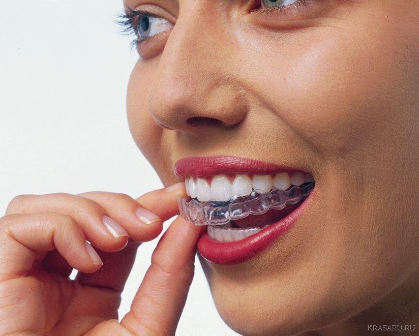 Винир зуб снятие