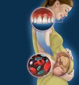 Что такое кариес и как его лечить беременным