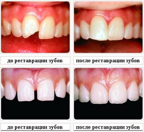 Наращивание зубов цена в курске - 098e5