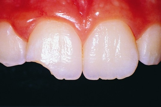 откололся зуб