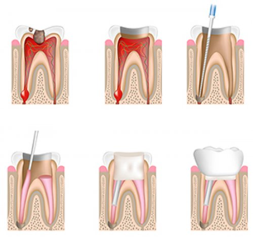 Если плохо прочищены каналы в зубе