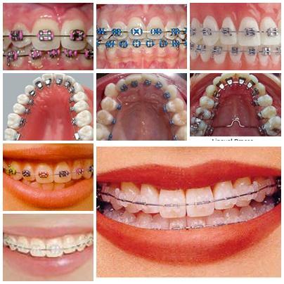 сколько стоят виниры на зубы в тольятти