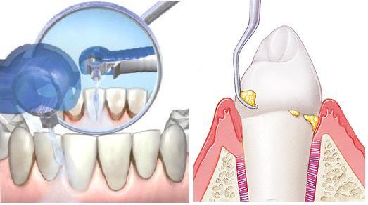 Как вылечить зуб в домашних условиях рецепт